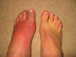 Gout Nov 06 005